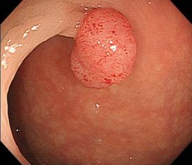 大腸 腺腫 と は