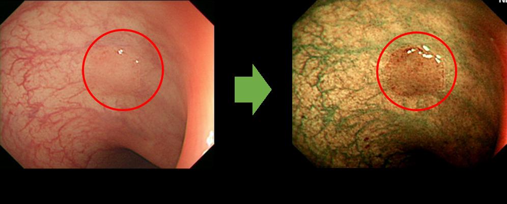 特殊光(NBI)による詳細な内視鏡診断